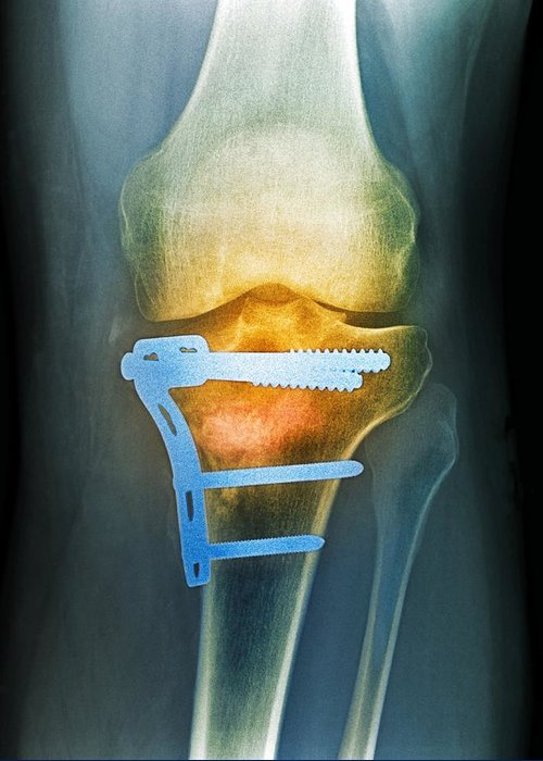 Bone Greeting Card featuring the photograph Pinned Broken Knee, X-ray by