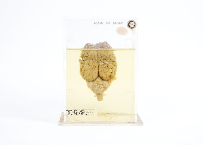 Brain Greeting Card featuring the photograph Preserved Sheep Brain by Gregory Davies, Medinet Photographics