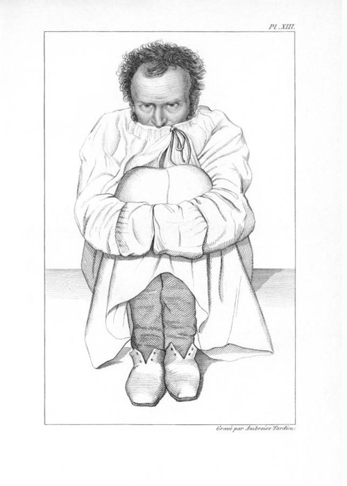 Human Greeting Card featuring the photograph Psychiatric Patient, 19th Century by King's College London