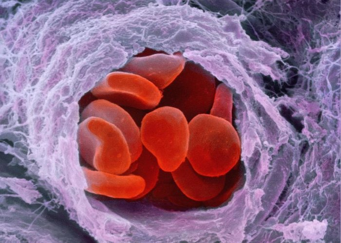 Magnified Image Greeting Card featuring the photograph Red Blood Cells by Professors P.m. Motta & S. Correr