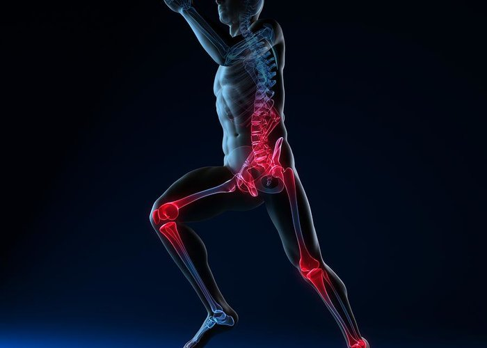Artwork Greeting Card featuring the photograph Running Injuries, Conceptual Artwork by Sciepro
