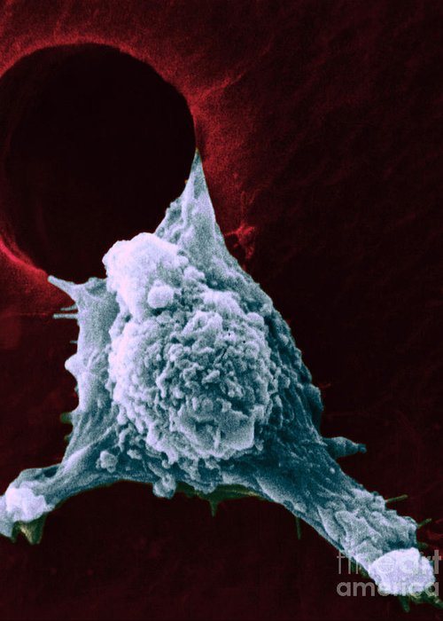 Sem Greeting Card featuring the photograph Sem Of Metastasis by Science Source