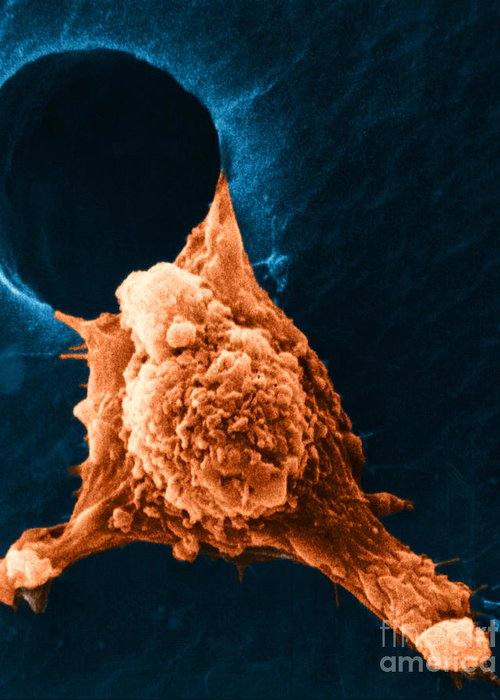 Sem Greeting Card featuring the photograph Metastasis by Science Source