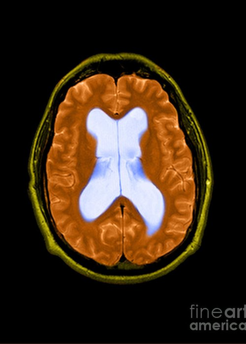 Abnormal Enlargement Of Cerebral Ventricles Greeting Card featuring the photograph Mri Communicating Hydrocephalus Nph by Medical Body Scans