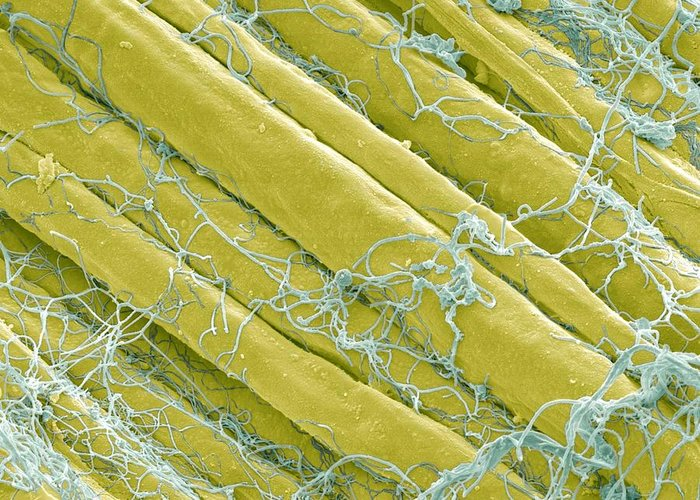 Anatomy Greeting Card featuring the photograph Optic Nerve Fibres, Sem by Steve Gschmeissner