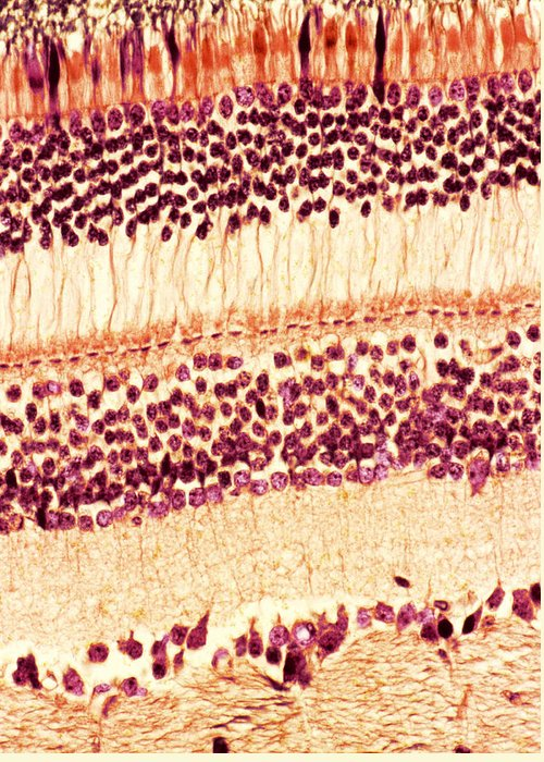 Retina Greeting Card featuring the photograph Retina, Light Micrograph by Steve Gschmeissner