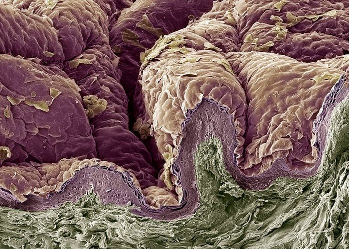 Skin Greeting Card featuring the photograph Skin Tissue, Sem by Steve Gschmeissner