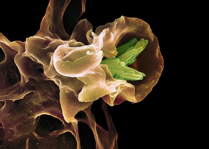 Mycobacterium Tuberculosis Greeting Card featuring the photograph Macrophage Engulfing Tb Bacteria, Sem by