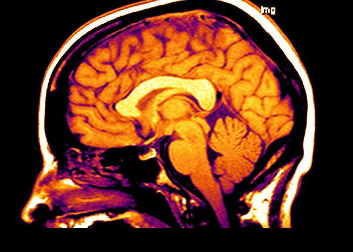 Brain Greeting Card featuring the photograph Mri Of Brain by Medical Body Scans