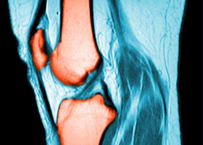 Anterior Cruciate Ligament Art | Fine Art America