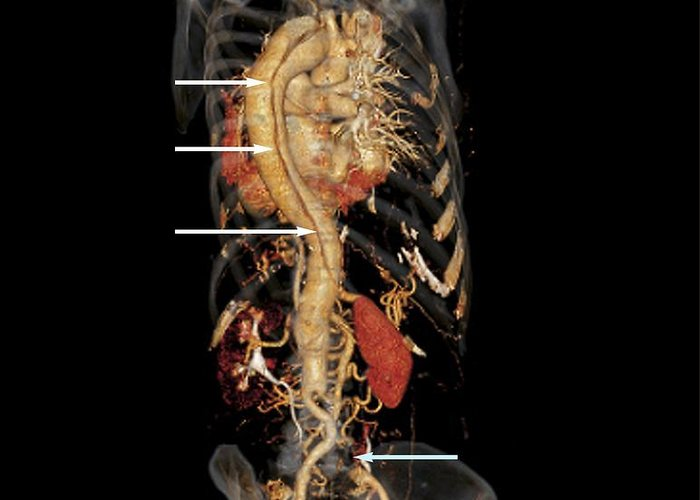 3-d Greeting Card featuring the photograph Aortic Aneurysm Ct Scan by Zephyr