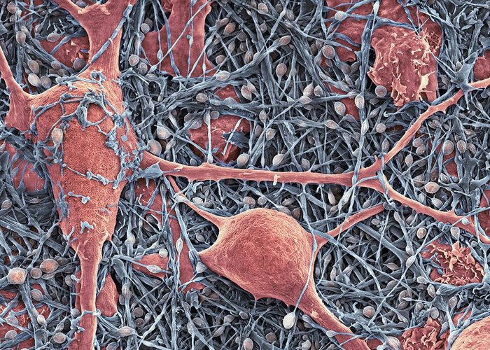 Nerve Cell Greeting Card featuring the photograph Nerve Cells And Glial Cells, Sem by Thomas Deerinck, Ncmir