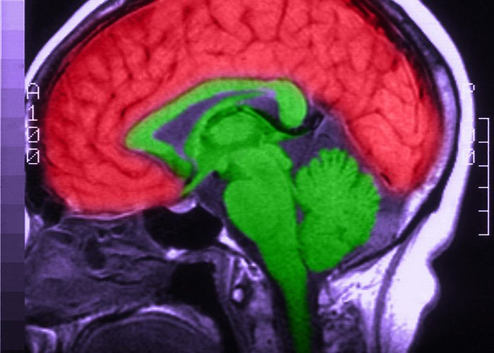 Brain Greeting Card featuring the photograph Mri Of Normal Brain by Science Source