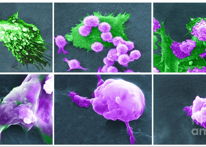 Scanning Electron Micrograph Greeting Card featuring the photograph Cancer Cell Death Sequence, Sem by Science Source