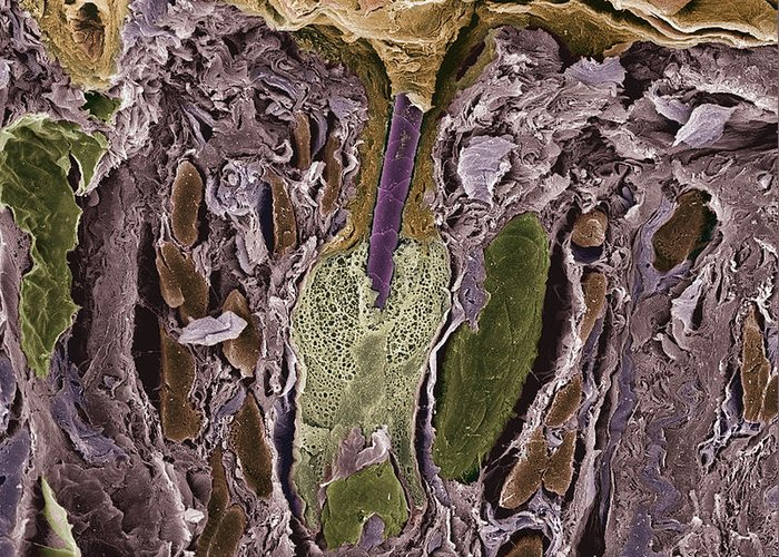 Follicle Greeting Card featuring the photograph Hair Follicle, Sem by Steve Gschmeissner