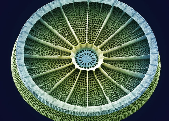 Arachnoidiscus Sp. Greeting Card featuring the photograph Diatom, Sem by Steve Gschmeissner