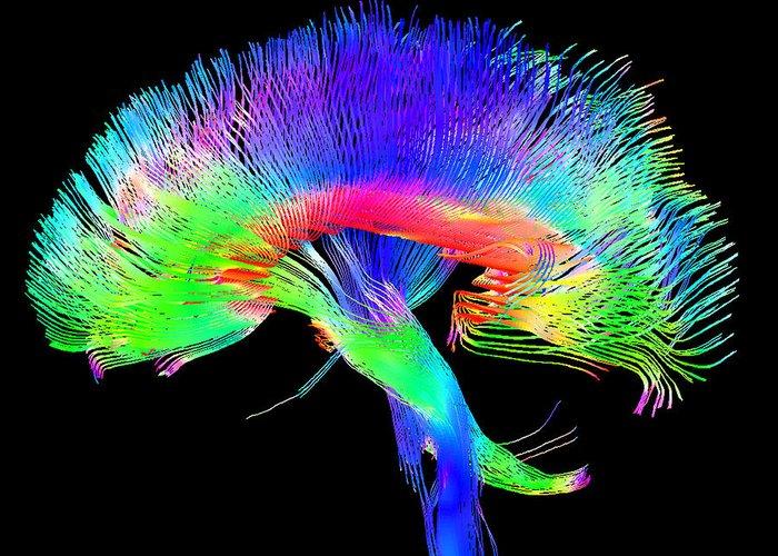 Neurological Greeting Cards