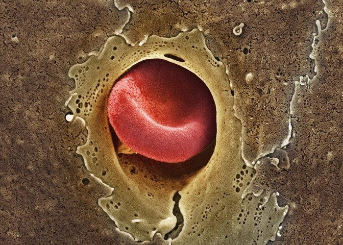 Erythrocyte Greeting Card featuring the photograph Capillary, Sem by Thomas Deerinck, Ncmir