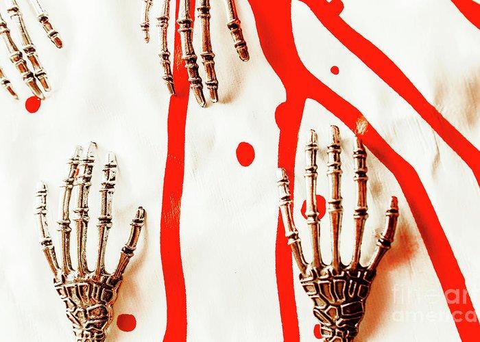 Hand Anatomy Art Fine Art America