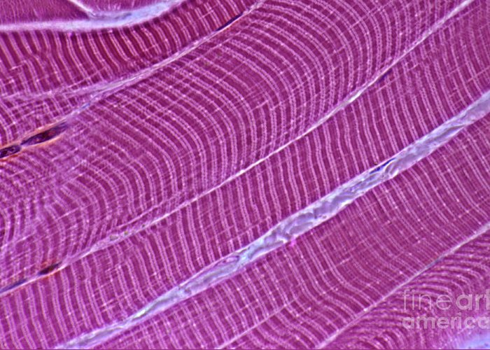Light Microscopy Greeting Card featuring the photograph Primate Skeletal Muscle by M. I. Walker