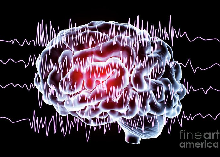 Nobody Greeting Card featuring the photograph Brain And Brain Waves In Epilepsy by Kateryna Kon/science Photo Library