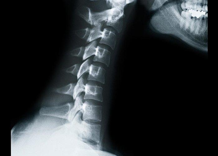 Human Vertebra Greeting Card featuring the photograph X Ray Of Neck Vertebrae by Anthony Bradshaw