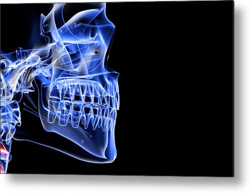 Anatomy Metal Print featuring the digital art The Bones Of The Jaw by Medicalrf.com