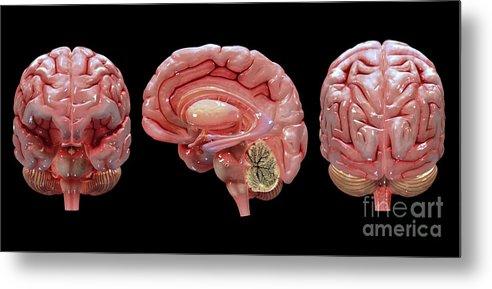 Biomedical Illustrations Metal Print featuring the digital art 3d Rendering Of Human Brain by Stocktrek Images