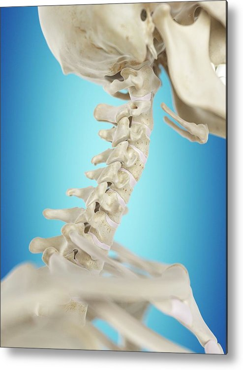 Artwork Metal Print featuring the photograph Human Cervical Spine by Sciepro