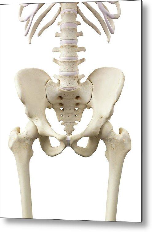 Human Hip Bones Metal Print By Sciepro