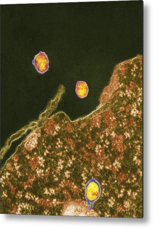 Hepatitis C Metal Print featuring the photograph Hepatitis C Viruses, Tem by Thomas Deerinck, Ncmir