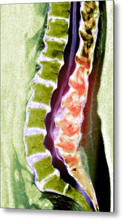 Disorder Metal Print featuring the photograph Spine Degeneration, Mri Scan by Du Cane Medical Imaging Ltd
