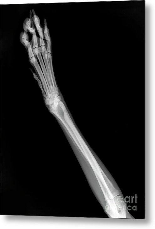 Dog Metal Print featuring the photograph X-ray Of A Dog's Front Left Leg by Yael Rosen