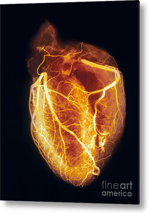 Angiogram Metal Print featuring the photograph Colored Arteriogram Of Arteries Of Healthy Heart by Spl