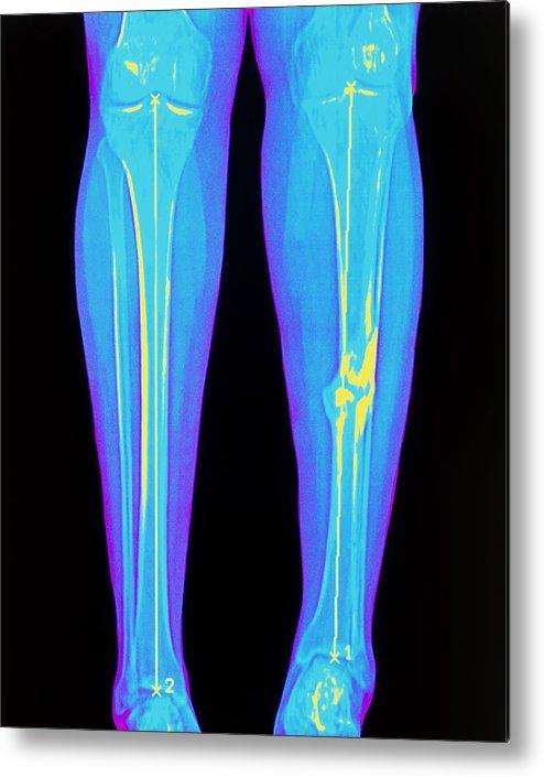 Coloured X-ray Of Fractured Shin Bone (tibia) Metal Print by Mehau Kulyk