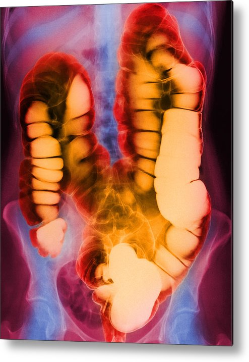 Barium X-ray Metal Print featuring the photograph Coloured X-ray Of The Colon After A Barium Enema by