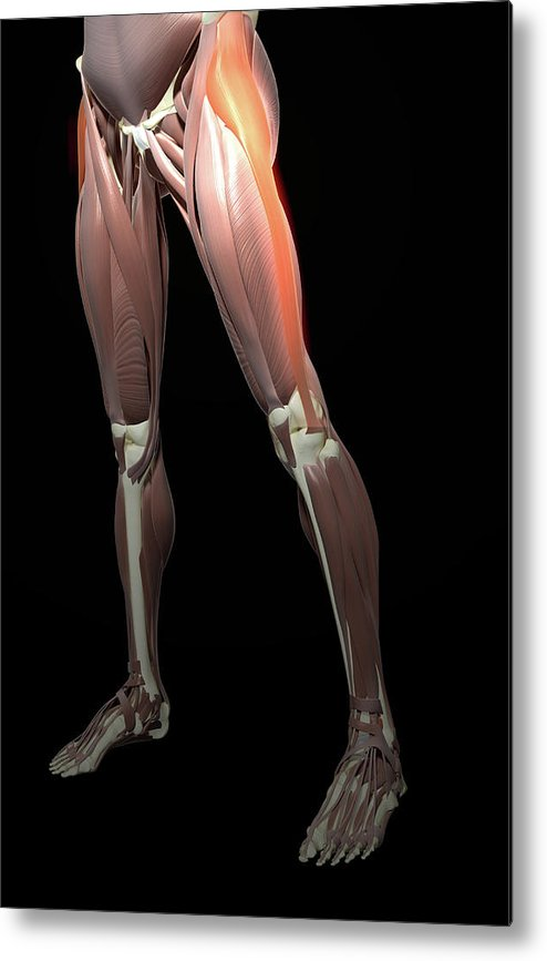 Vertical Metal Print featuring the photograph Thigh/lower Limb Abduction by MedicalRF.com