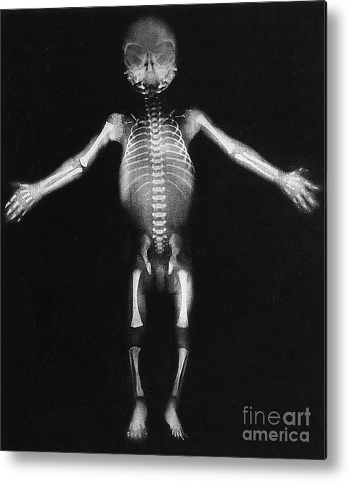 Skeleton Metal Print featuring the photograph Skeleton Of A Baby by Photo Researchers