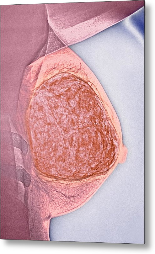 Medicine Metal Print featuring the photograph Breast Tumour, X-ray by Cnri