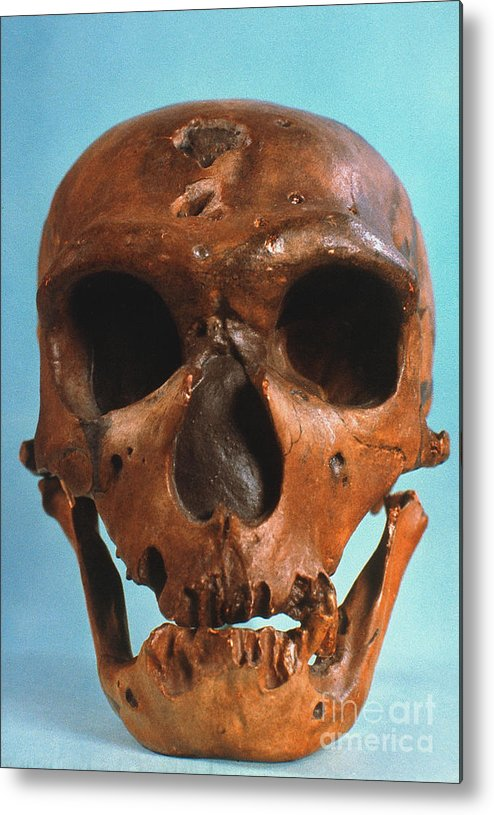Ancient Metal Print featuring the photograph Neanderthal Skull by Granger