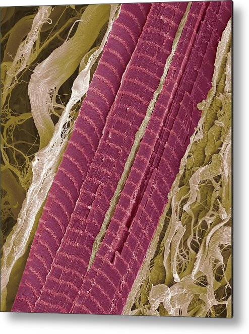 Lumbrical Metal Print featuring the photograph Primate Finger Muscle, Sem by Steve Gschmeissner