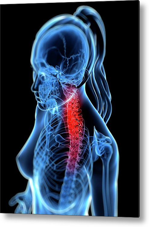 Anatomy Metal Print featuring the digital art Back Pain, Conceptual Artwork by Sciepro
