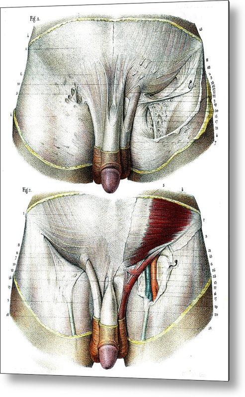 Male Groin Anatomy Metal Print By Collection Abecasis