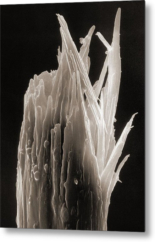 Human Body Metal Print featuring the photograph Sem Of A Damaged Human Head Hair With A Split End by .