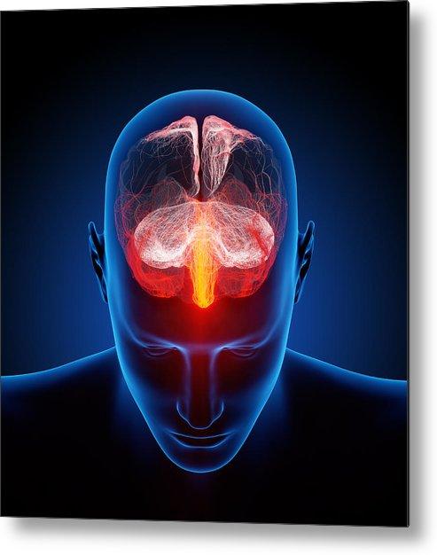 Brain Metal Print featuring the photograph Human Brain by Johan Swanepoel