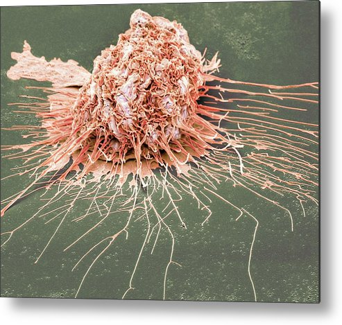 Scanning Electron Micrograph Metal Print featuring the photograph Bronchial Epithelium by Steve Gschmeissner