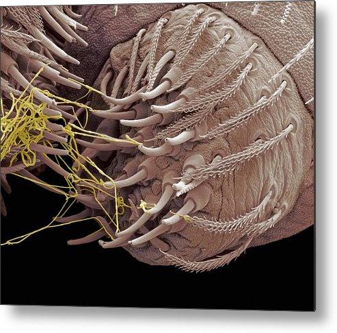 Abdomen Metal Print featuring the photograph Spider Spinneret, Sem by Steve Gschmeissner