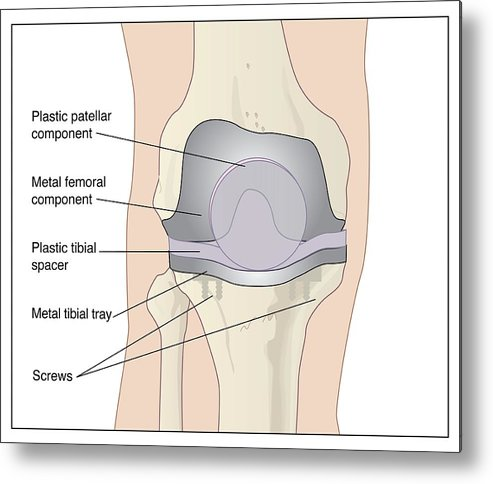 Artwork Metal Print featuring the photograph Knee After Knee Replacement, Artwork by Peter Gardiner