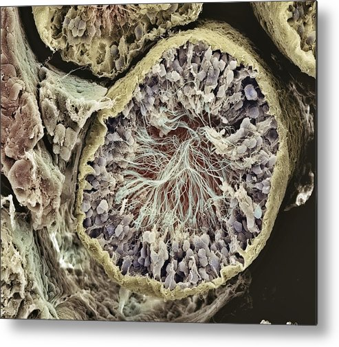 Magnified Image Metal Print featuring the photograph Sperm Production Site, Sem by Steve Gschmeissner
