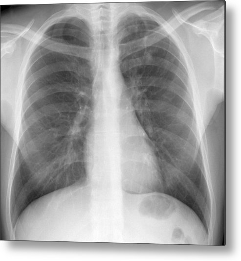 Tuberculosis Metal Print featuring the photograph Tuberculosis, X-ray by Du Cane Medical Imaging Ltd